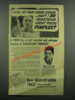 1939 Fleischmann's Yeast Ad - Something About Pimples