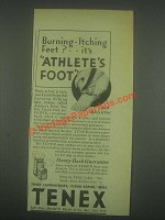 1932 Tenex Laboratories Ad - Burning-Itching Feet?